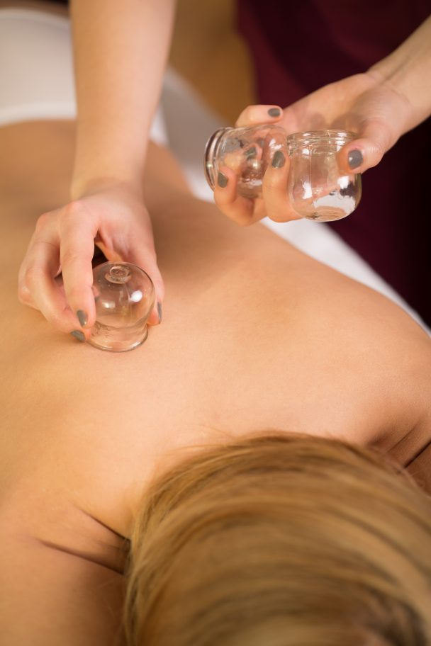 Everything You Need To Know About Cupping Athletico
