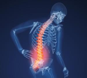 xray lower back pain