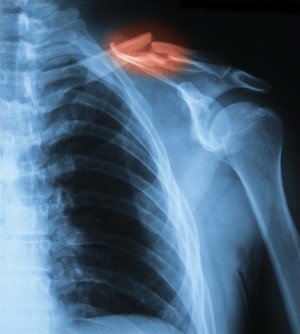 Fractured clavicle from hockey injury