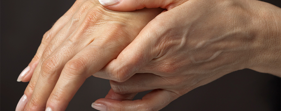 carpal tunnel and pregnancy