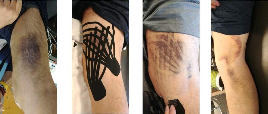 does kinesio tape work after surgery
