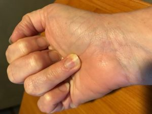 4 Common Fingertip Injuries